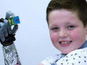 Dokuz yaşındaki çocuğa biyonik kol