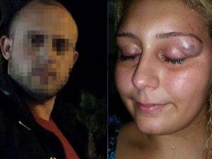 Barbar eski sevgili gözaltına alındı