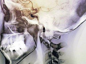 Beynin tiryaki bölümü bulundu