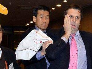 Büyükelçiyi yaralayan saldırgana 12 yıl hapis