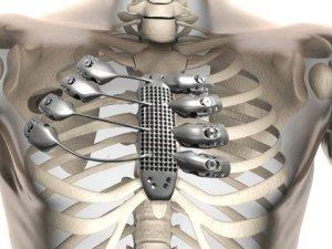 3D Yazıcı ile Kanser önlenecek!