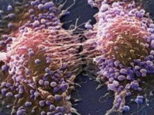 Türkiye'de her 12 erkekten biri prostat kanseri