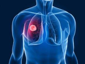 Akciğer kanserinde bu yöntem umut veriyor
