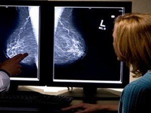 Meme kanseri tarih mi oluyor?