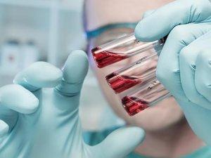 Çin, Ebola aşısı üretecek