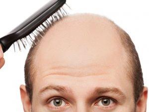 Saç ekiminden sonra yapılacaklara dikkat