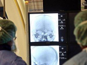 Beynin koruyucu tabakası ilk kez aşıldı
