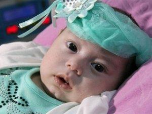 Dört aylık bebek 'doku yapıştırıcısıyla' hayata tutundu
