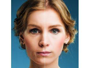 Yüz Gençleştirme Sayesinde Yaşlanmaktan Korkmayın