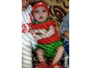 10 Aylık Iraklı Bebeğin Ölümü Şüpheli Bulundu