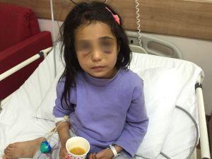 Üvey Annesinin Dövdüğü Kız Çocuğu Devlet Korumasına Alınıyor