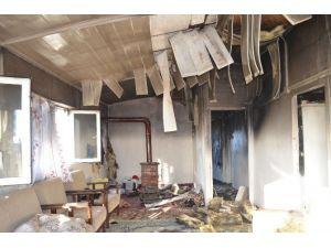 Kibritle Oynarken Çıkan Yangında Yaralanan Kardeşlerden Acı Haber