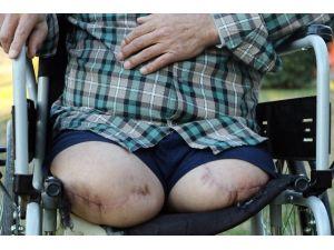 İki Bacağı Diz Altından Kesilen Şahıs Malulen Emeklilik İstiyor