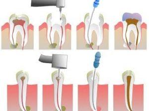 Ağrıyan dişler kısa sürede tedavi edilebiliyor