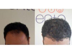 Saç Ekimi Operasyonlarında Şapka Uyarısı