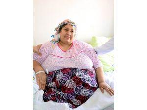 220 Kilo Olan Kadına Başarılı Mide Ameliyatı