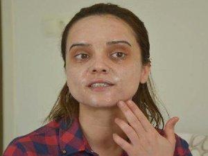 Genç Kadının Yüzünde Kimyasal Peeling Uygulamasının Ardından Yanıklar Oluştu