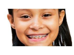 Ağızdan Nefes Alma Çocuklarda Diş Yapısını Bozuyor