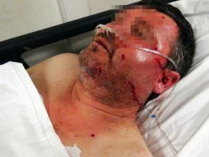 Aile Kavgasında Tüfekler Konuştu: 2 Yaralı