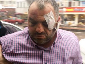 Çay Ocağının Önüne Park Eden Gençleri Bıçaklayan Çaycı Tutuklandı