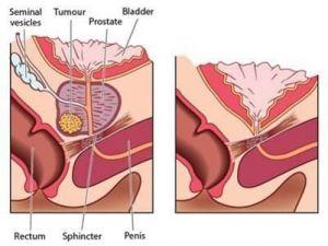 Prostat Kanserinde Erken Teşhisin Önemi