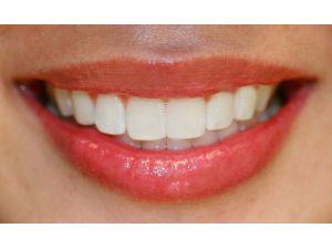İnsanların Yüzde 7'si Gülmekten Kaçınıyor