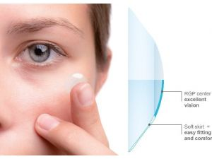 Vsy Bıotechnology Kontakt Lens Ürün Gamını Yeni Ve Güçlü Markalarla Genişletiyor