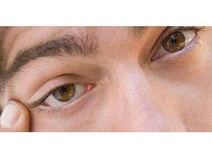 Gözler Vücudun Aynasıdır