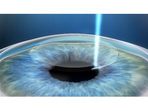 Gözlük Kullanımı 22 Saniyede Tarih Oluyor