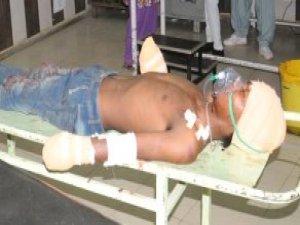 Baba, 8 Aylık Bebeğine Tecavüz Eden Gencin Ellerini Kesti
