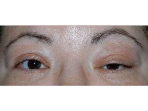 Göz Kapağı Düşüklüğü Görme Kaybına Neden Olabiliyor