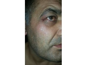 SP Kuşadası İlçe Başkanı afiş arbedesinde yaralandı