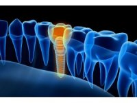 """""""Başarılı implant için kemik kalitesi önemli"""""""