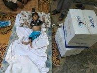 Suriyeli küçük Ömer Türkiye'de sağlığına kavuşacak