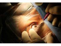 Excimer lazer ile gözlüklerden 5 dakikada kurtulun