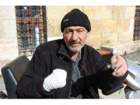 İki ayağı ve bir kolu kesildi yine sigaradan vazgeçmedi