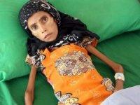 10 kg ağırlığındaki Yemenli kız tedavi altına alındı