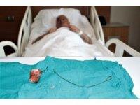 Unutulan 28 santimlik 'stent' 7 yıl sonra fark edildi