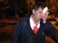 Usta gazeteciye alçak saldırı
