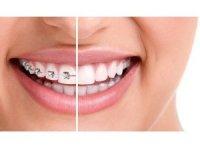 Çarpık dişlere telsiz çözüm
