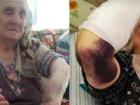 92 yaşındaki kadına gelin dayağı! sopayla dövdü, kolunu kırdı