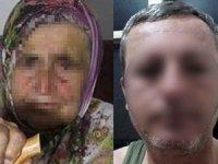 Adana'da 80 yaşındaki kadına tecavüz girişimi... O sapık tutuklandı!