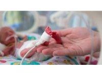Her yıl doğan 15 milyon prematüre bebekten 1 milyonu hayatını kaybediyor