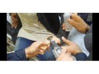 Şanlıurfa'da genç kadının parmağına sıkışan yüzük kesilerek çıkarıldı