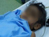 Samsun'da 4. kattan düşen çocuk ağır yaralandı