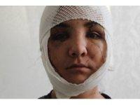 Kocası yüzünü bıçakla paramparça etti, ölümden kıl payı kurtuldu