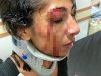 Çıkan olayda kafasına bardakla vurulan kadının yüzüne 6 dikiş atıldı,