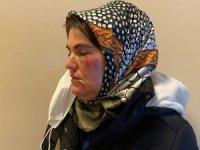 Maltepe'de korkunç olay: Sokak ortasında tanımadığı şahsın saldırısına uğradı