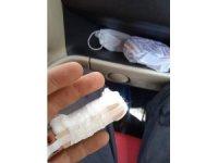 Parmağındaki 3 santimetrelik vidayla hastaneye koştu