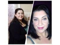 Obezitede Kalıcı Tedavinin Yöntemi Gastrikby-pass